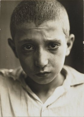 Consuelo Kanaga (American, 1894-1978). <em>Malnutrition, New York</em>, 1928. Gelatin silver photograph, 4 3/8 x 3 1/8 in. (11.1 x 7.9 cm). Brooklyn Museum, Gift of Wallace B. Putnam from the Estate of Consuelo Kanaga, 82.65.318 (Photo: Brooklyn Museum, 82.65.318_PS2.jpg)