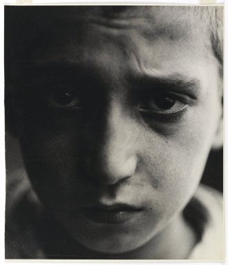 Consuelo Kanaga (American, 1894-1978). <em>Malnutrition (New York)</em>, 1928. Gelatin silver photograph, Image: 10 1/2 x 9 in. (26.7 x 22.9 cm). Brooklyn Museum, Gift of Wallace B. Putnam from the Estate of Consuelo Kanaga, 82.65.447 (Photo: Brooklyn Museum, 82.65.447_PS1.jpg)